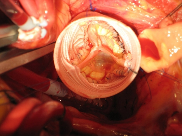 Photo of an aortic valve after being repaired